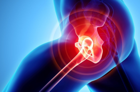 Benefits of CBD for Hip Bursitis
